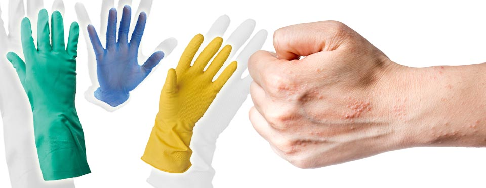 A cleaner will need protection against substances that can cause itching, blistering and flaking of the skin